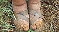Ethiopian Farmer affected by Podoconiosis - NIH - March 2011.jpg
