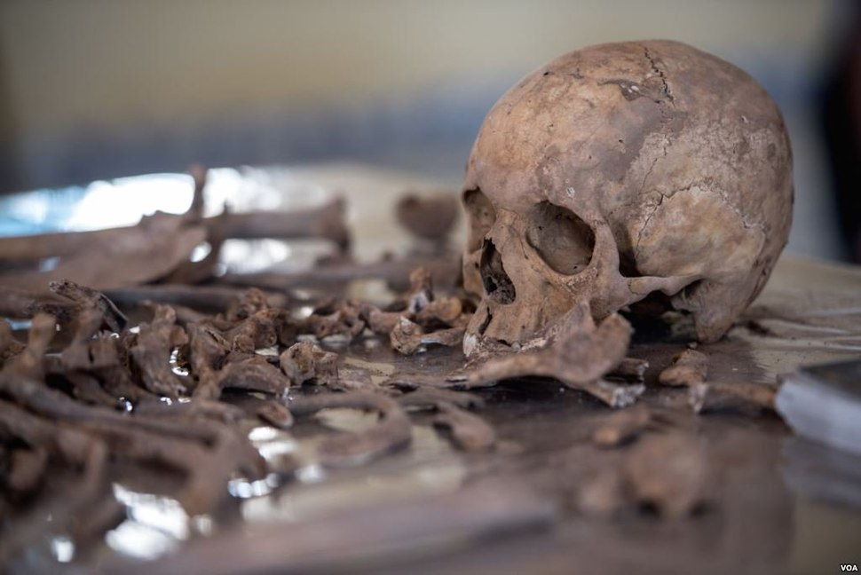 Exhumed skeletal remains of victims of the Isaaq genocide