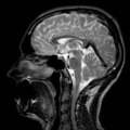 Head MRI, enlarged inferior sagittal sinus.png