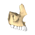 Maxilla close-up lateral.png