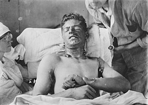 Blister agent - Soldier with moderate mustard gas burns sustained during World War I showing characteristic bullae on neck, armpit and hands