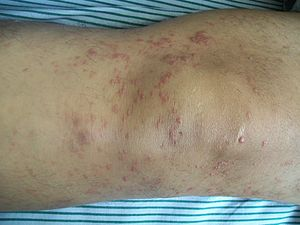 What is mycosis fungoides?