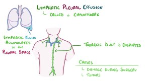 File:Pleural effusion.webm