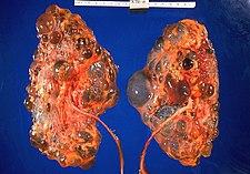 Polycystické ledviny