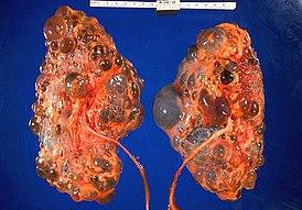 Поликистоз почек у человека лечение 18
