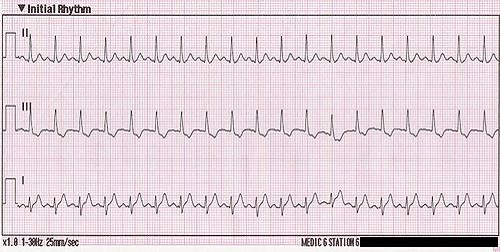 Taquicardia hipertensión sinusal