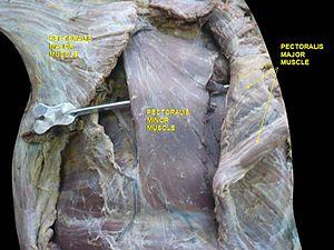 Pectoralis minor muscle - Image: Slide 4por