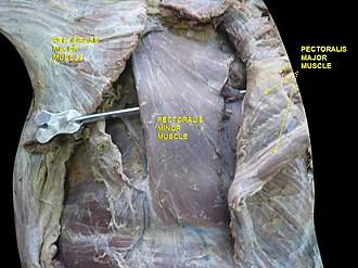 Pectoralis minor - Image: Slide 4por