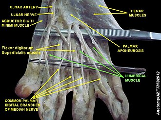 Lumbricals of the hand - Image: Slide 6PPP