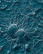 Staphylococcus aureus, 50,000x, USDA, ARS, EMU.jpg