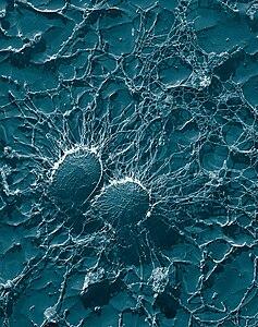 黄色ブドウ球菌の顕微鏡写真