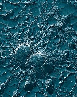 Staphylococcus aureus, 50,000x, USDA, AR, EMU.jpg