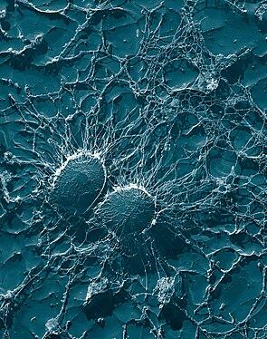 Staphylococcus aureus sekundärelektronenmikroskopische Aufnahme