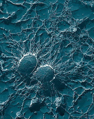 New polymers could make life tough for bacteria