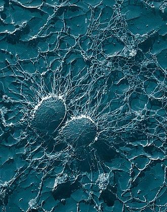 Exoenzyme - Fibrin layer formed by Staphyloccocus aureus