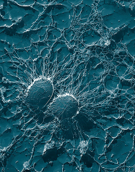 Image:Staphylococcus aureus, 50,000x, USDA, ARS, EMU.jpg