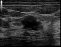 Ultrasound Scan ND 134324 1347240 cr.png