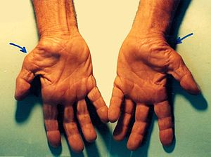 English: Untreated Carpal Tunnel Syndrome