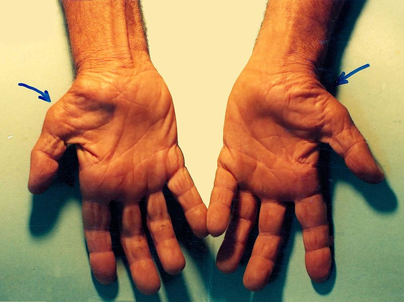 File:Untreated Carpal Tunnel Syndrome.JPG