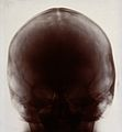 X-ray photograph of a skull, probably from a person with Dow Wellcome V0030031.jpg