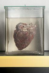 Bovine heart.jpg