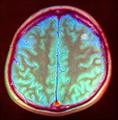 Brain MRI 143937 rgbcb ce.png