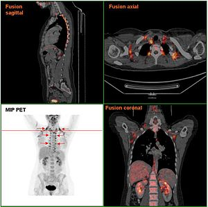 Brown adipose tissue - Brown adipose tissue in a woman shown in a PET/CT exam
