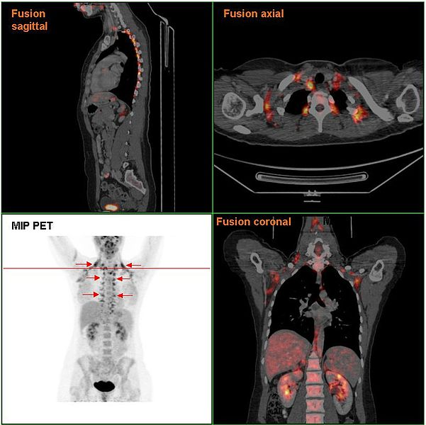 Brown adipose tissue in a woman shown in a PET/CT Scan