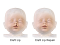 Cleft Lip Repair.png