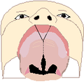 Cleft palate 1 bot.png