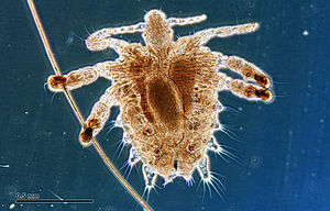 Crab louse (251 23) Female, from a human host.jpg
