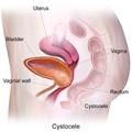 Cystocele.png