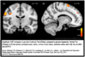 Dissociative identity disorder neuroscience brain imaging.png