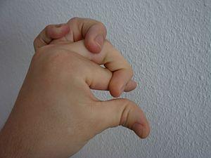 Finger pile Ehlers Danlos syndrome