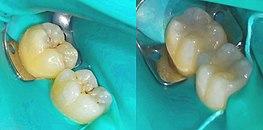 Dental composite - Wikipedia