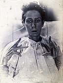 Friern Hospital, London; a woman suffering from mania, with Wellcome V0029627.jpg