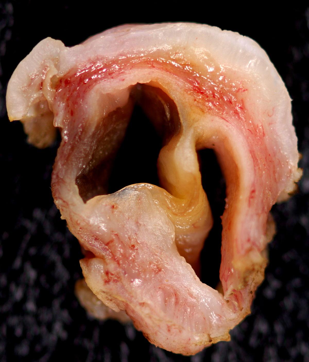 Gartner's duct cyst - Wikipedia