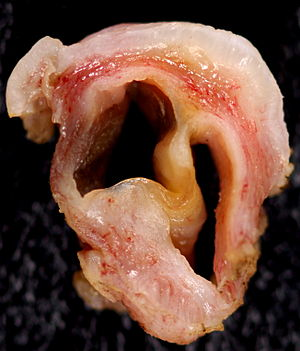 Vaginal occlusive cysts