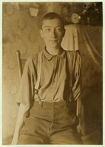 Harry McShane, age 16, 1908. Pulled into machinery in a factory in Cincinnati and had his arm ripped off at the shoulder and his leg broken without any compensation. Lewis Wickes Hines - Harry McShane 1908.jpg