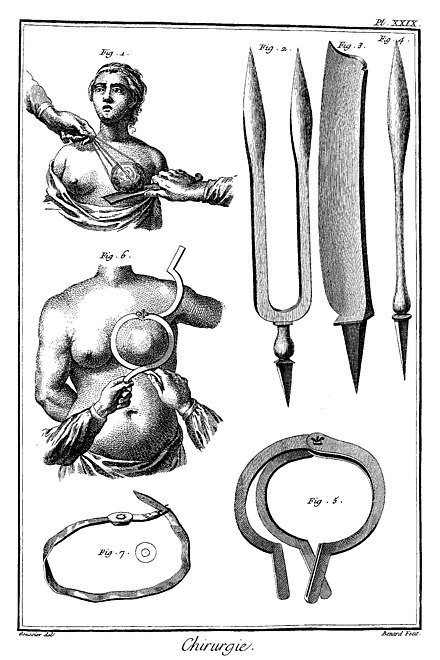 Breast cancer surgery in 18th century Louis-Jacques Goussier Enzyklopadie Diderot Pl XXIX.jpg