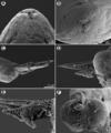 Parasite140132-fig2 Philometra protonibeae (Nematoda, Philometridae).png