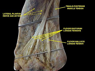 Tibialis posterior muscle - Image: Slide 1ADA