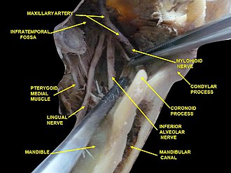 Coronoid process of the mandible - Image: Slide 7cece