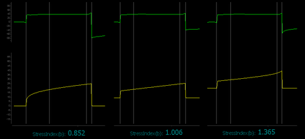 stress index of an ards patient with different values of peep