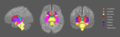 Subcortical structures.png