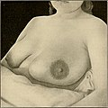 The breast- its anomalies, its diseases, and their treatment (1917) (14776907343).jpg