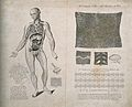 Vessels and glands of the lymphatic system; seven figures, i Wellcome V0008037.jpg