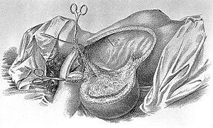 William Stewart Halsted - Radical mastectomy