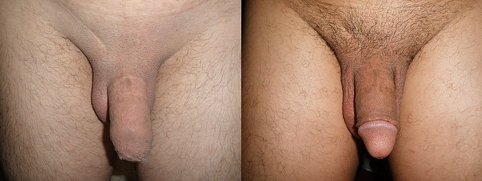 Adult circumcision before and after