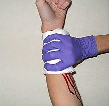 First Aid/External Bleeding - Wikibooks, open books for an